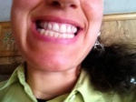 My teeth prior to experiment  Taken 3/29/14